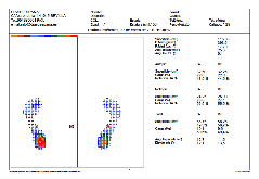 biomecanica-clinicapodocenavila4